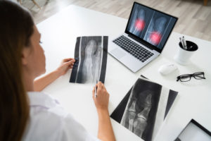 Female Doctor Examining Knee X-ray On Laptop